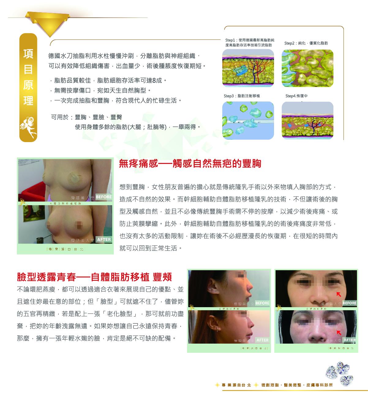 幹細胞自體脂肪移植 (豐頰 豐胸)